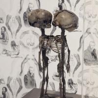 Skjelett/Skeleton
